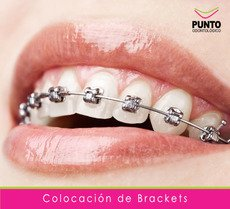 Brackets Montevideo